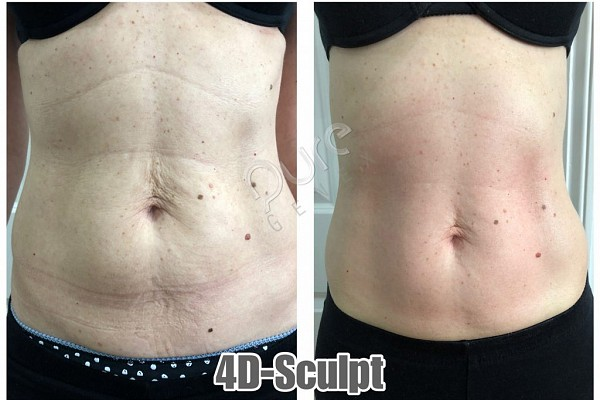 Amazing Skin Tightening Results With 4D-Sculpt
