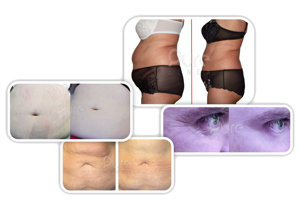 Skin Toning Get Rid Of Stretchmarks Get Rid Of